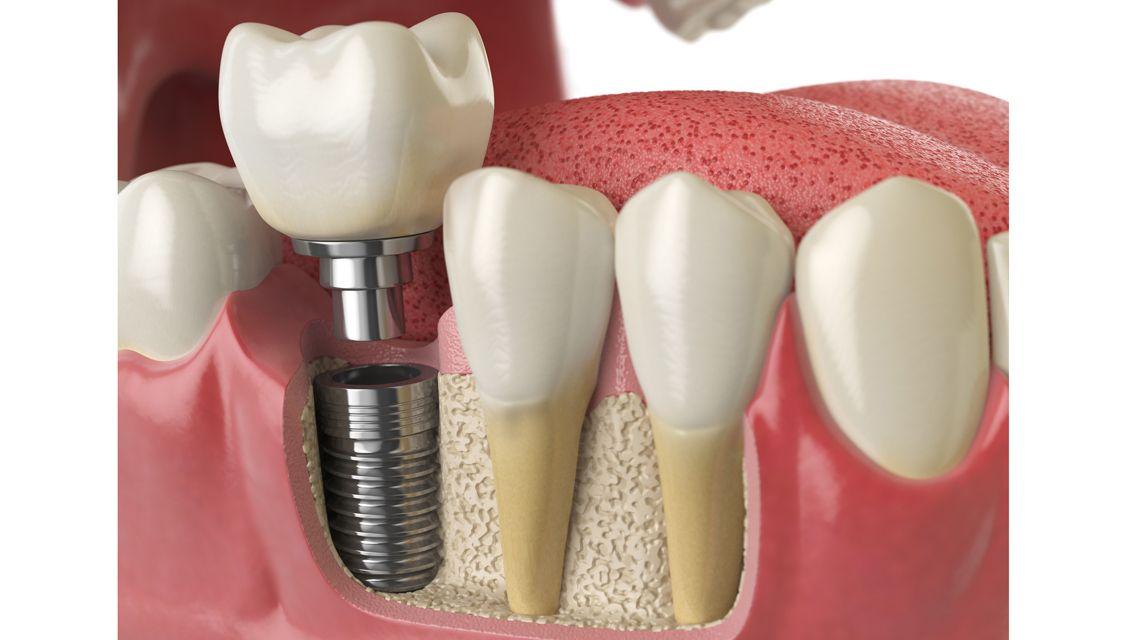 ایمپلنت دندان چیست | مزیت های ایمپلنت های دندانی | دکتر واحدی فردیس کرج