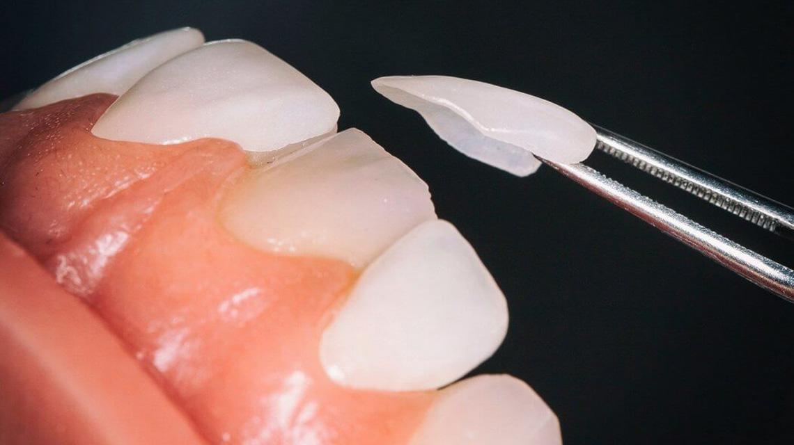 لمینت یا ونیر چیست ؟ همه چیز درباره لمینت   دندانپزشکی دکتر رضا واحدی فردیس کرج