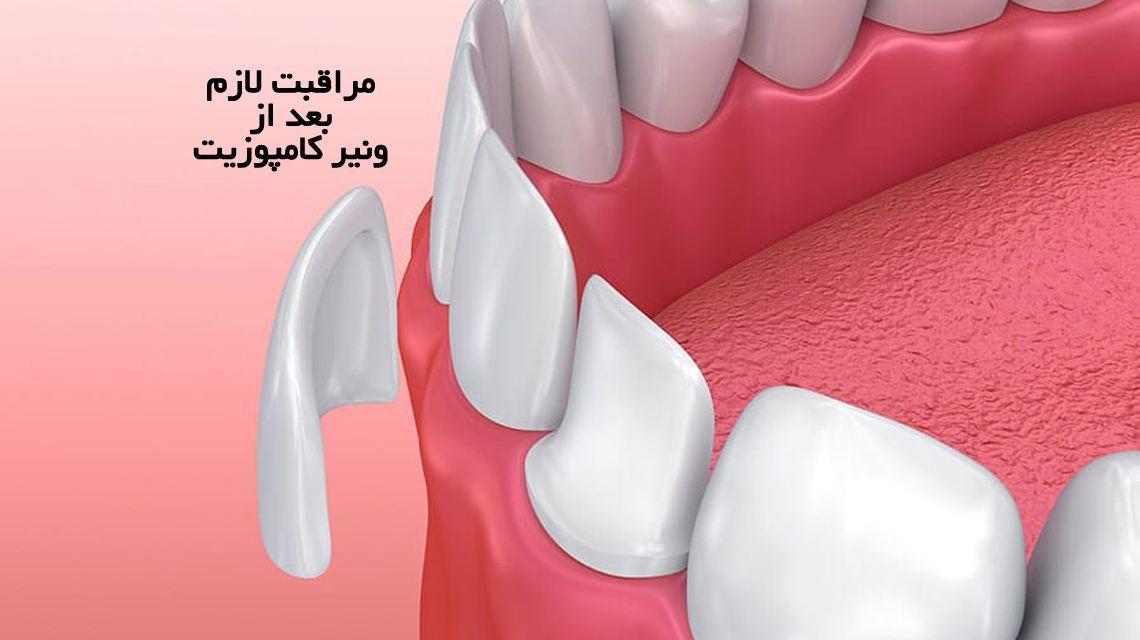 مراقبت های لازم بعد از ونیر كامپوزیت | مرکز دندانپزشکی دکتر رضا واحدی در فردیس کرج | مراقبت های بعد از کامپوزیت ونیر دندان