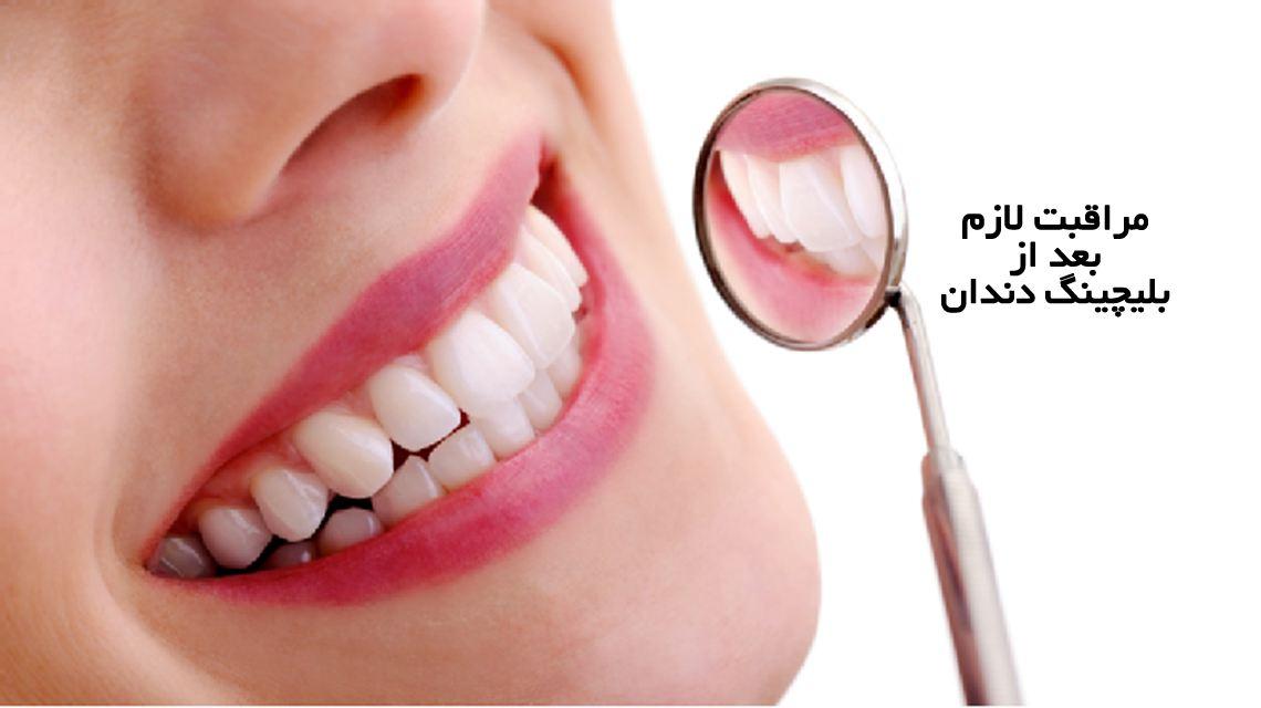 مراقبت های لازم بعد از بلیچینگ دندان | مرکز دندانپزشکی دکتر رضا واحدی واقع در فردیس کرج | همه چیز در مورد سفید کردن با بلیچینگ دندان