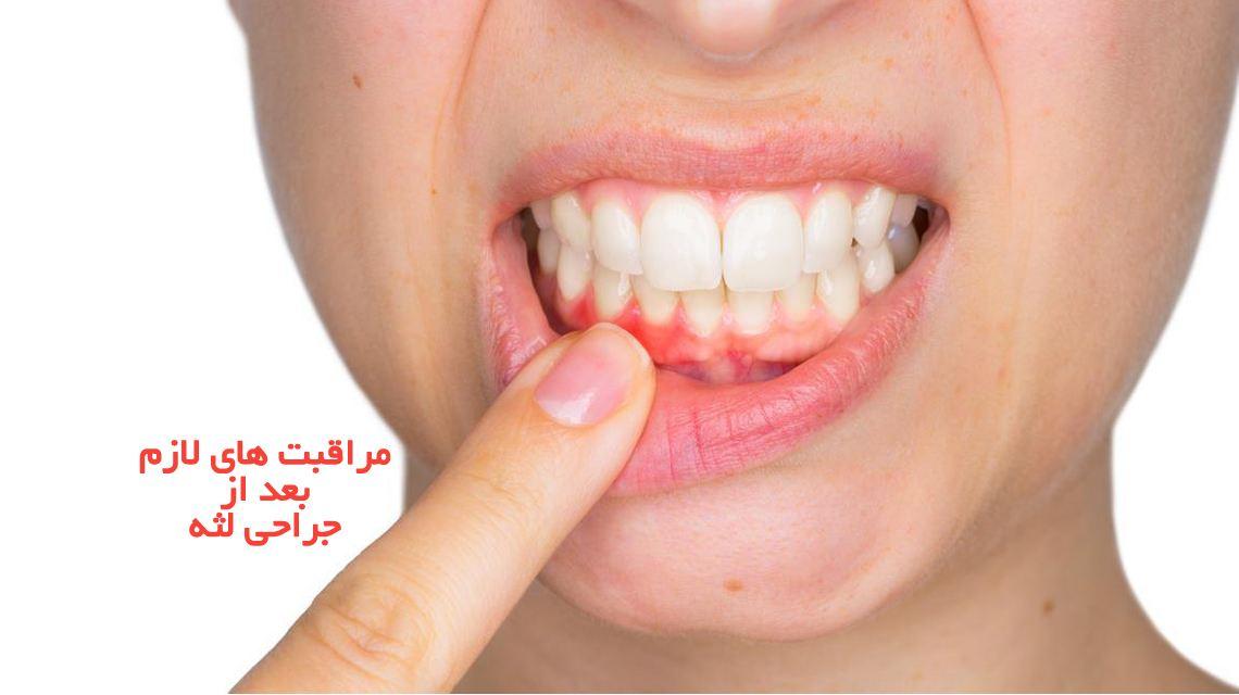 مراقبت های لازم بعد از جراحی لثه | مرکز دندانپزشکی دکتر رضا واحدی | نکات لازم بعد از جراحی لثه که باید رعایت کنید | دندانپزشکی فردیس کرج