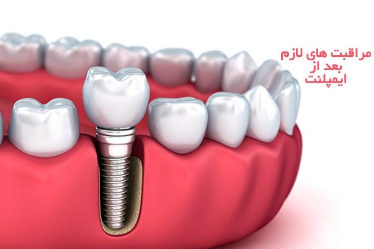 مراقبت های لازم بعد از جراحی ایمپلنت | مرکز دندانپزشکی دکتر رضا واحدی واقع در فردیس کرج | بعد از ایمپلنت دندان چه کارهایی بکنیم