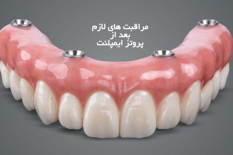 مراقبت های لازم بعد از پروتز ايمپلنت | مرکز دندانپزشکی دکتر رضا واحدی | کرج فلکه اول فردیس | چه مراقبت هایی بعد از پروتز ایمپلنت لازم است