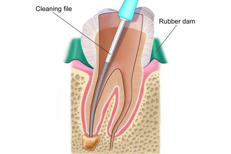 درمان ریشه | متخصص عصب کشی در فردیس کرج دکتر رضا واحدی | عصب کشی مجدد | درمان ریشه در اندیشه و شهریار | دندانپزشک درمان ریشه دندان